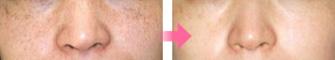 写真:しみ・そばかす治療-症例 治療前・治療後